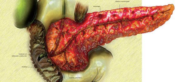 Ostryj-pankreatit-foto