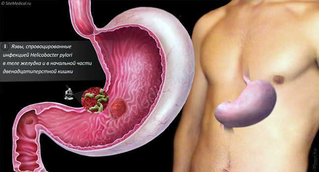 helicobacter pylori бактерии, что провоцируют язву желудка