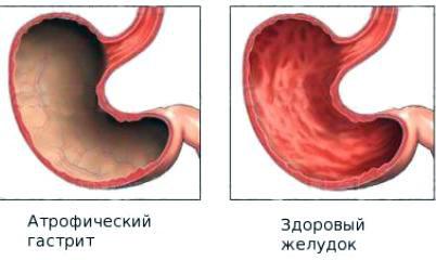 атрофический гастрит и здоровый желудок