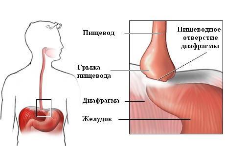 Gryzha-pishhevodnogo-otverstija