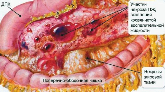 участки некроза поджелудочной железы