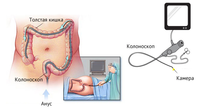 как проходит процедура колоноскопия кишечника
