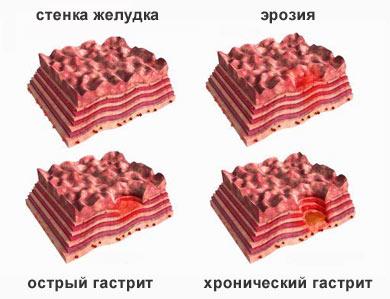ostryj-i-hronicheskij-gastrit