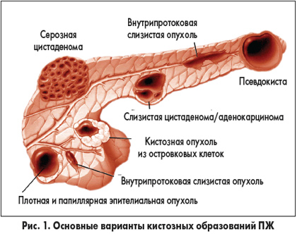 основные варианты кистозных образований