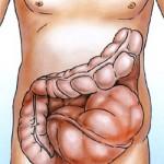 Болезнь Гиршпрунга — врожденное заболевание