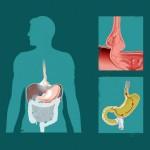 Грыжа пищевода: симптомы