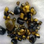 Камни в желчном пузыре: плохая вода или ожирение организма