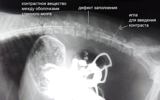 Podgotovka-k-procedure-irrigoskopii-foto