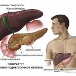 Воспаление поджелудочной железы (панкреатит)