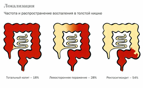 частота и распространение воспаления в толстой кишке