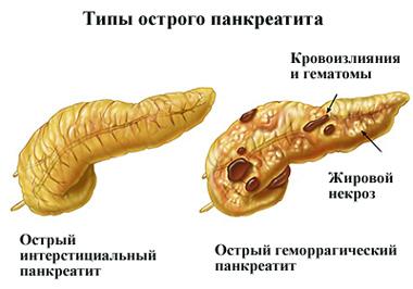 ostryj-pankreatit