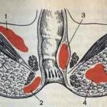 Что такое парапроктит и каковы причины его возникновения?