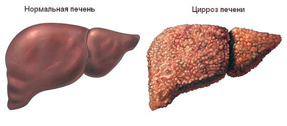 слева нормальная печень, а справа цирроз