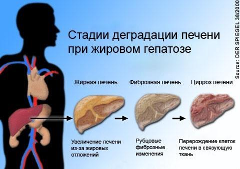 Заболеваний сопровождающихся желтухой