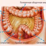 Воспаление сигмовидной кишки
