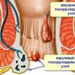 Геморрой при беременности: каковы причины?