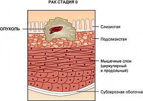 rak-stadija-nol
