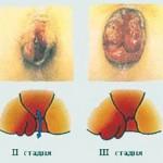 Как применять свечи Дорогова АСД-2 в лечении геморроя