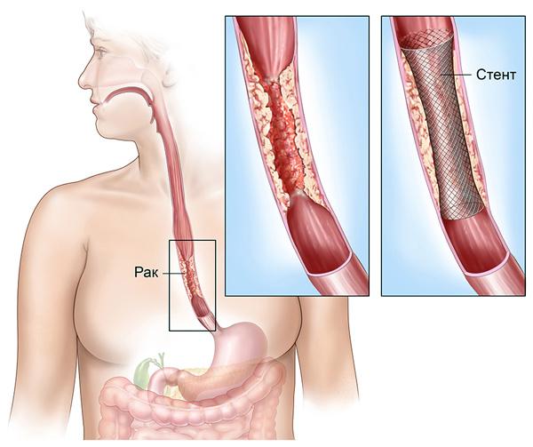 stent-v-pishhevod