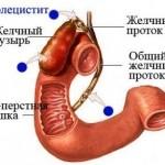 Хронический холецистит: клиника, диагностика и методы терапии