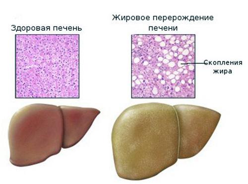 Лечение цирроза печени в тюмени