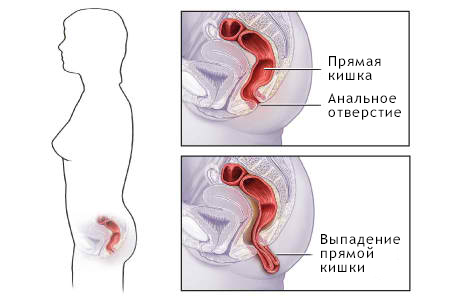 паразиты в прямой кишке человека