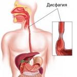 Дисфагия: патология пищевода