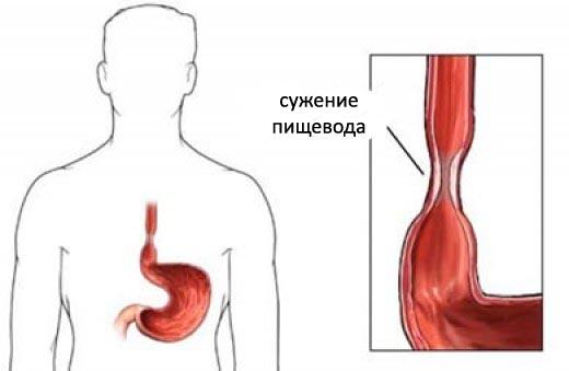 suzhenie-pichevoda