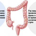 Рак кишечника: причина банальна — полипы