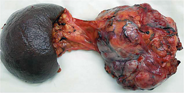 Стеатоз поджелудочной железы: виды, симптомы, лечение