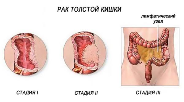 image-1509