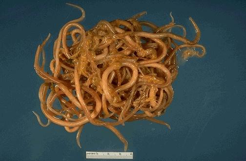 какие паразиты живут в организме человека фото