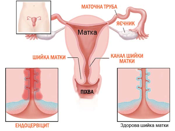 Хронический церцевит шейки матки и беременность