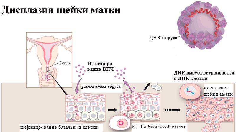 Генитальный кандидоз лечение мужчин