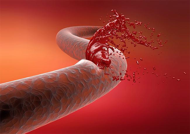 Желудочно кишечное кровотечение