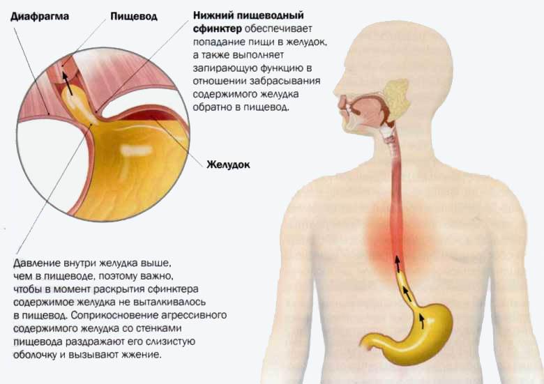 Роль медработника в профилактике гастрита