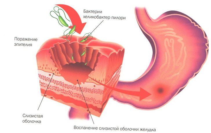 bolezni_jeludka2
