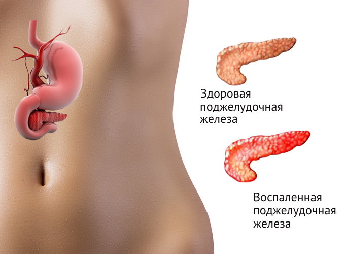 pankreatit-hronicheskij-1