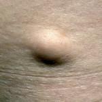 Липоматоз внутренних органов внешне не заметен