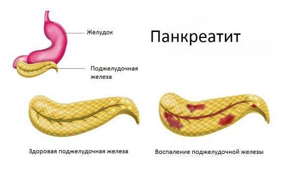 medicinatvet-ru-pankreatit