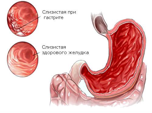 poverhnostniy-gastrit-1