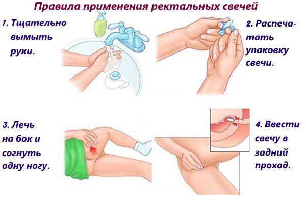 foto-v-azhurnih-chulkah