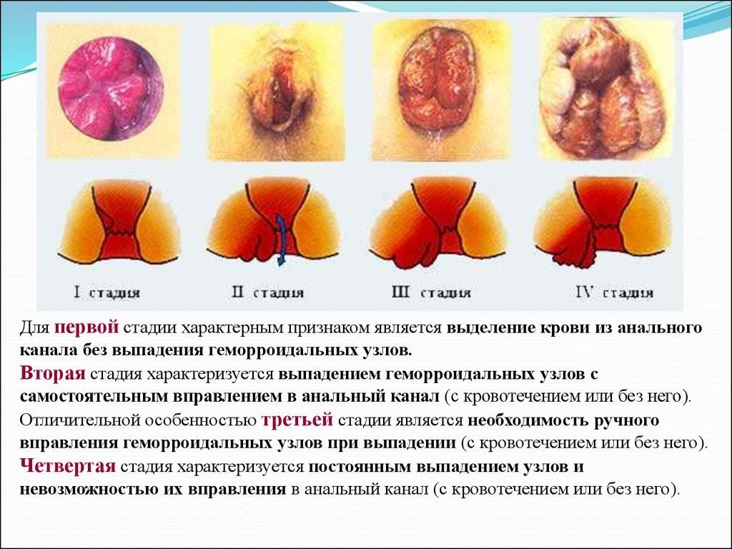 Кровенные выделения из анального отверстия