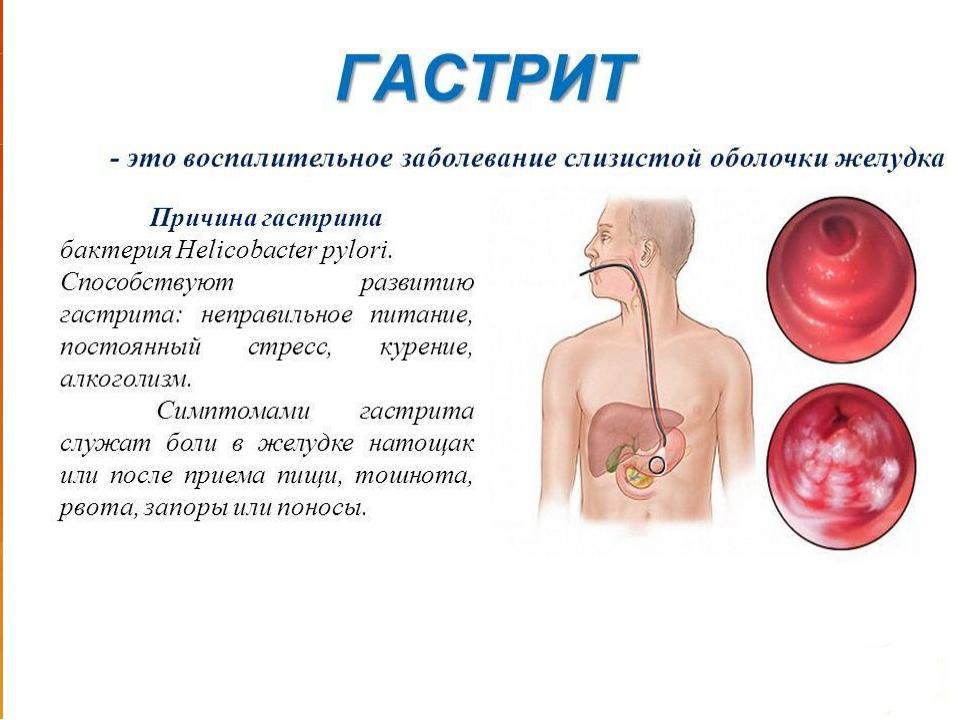 Боль в желудке после еды: причины и лечение Bolzheludka.ru