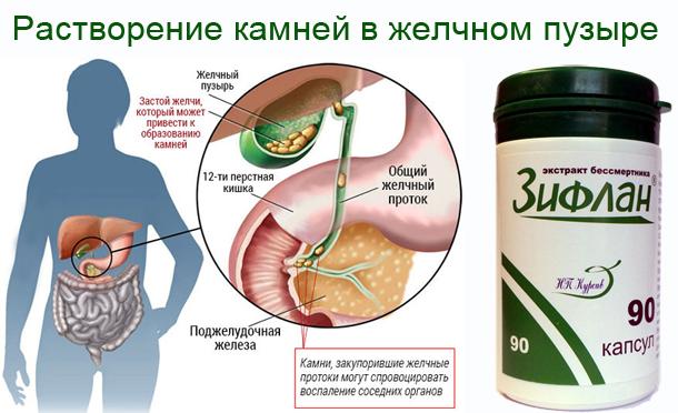 Атеросклероз артерий брюшной полости