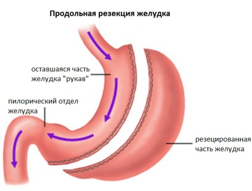 The cost of treatment of gastric cancer in Moscow