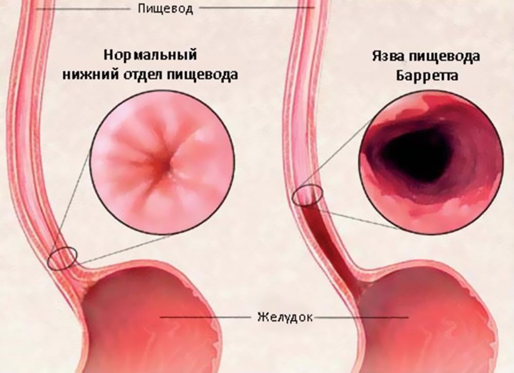 Эрозия пищевода и желудка: лечение медикаментами и диета Bolzheludka.ru