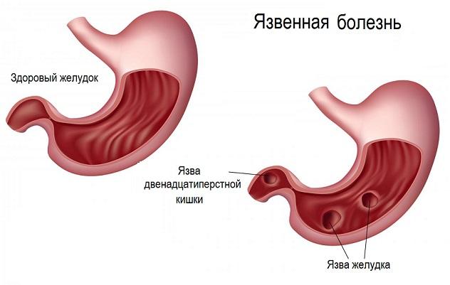 Острый гепатит лечение народными средствами
