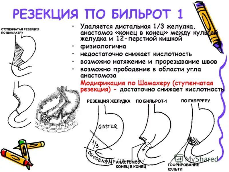 Резекция желудка схемы