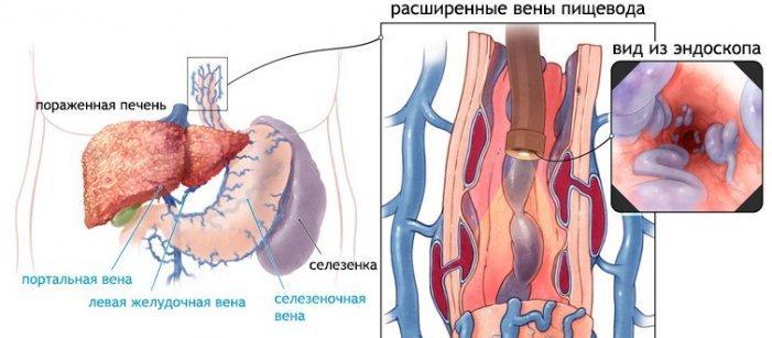 Варикоз вен желудка симптомы